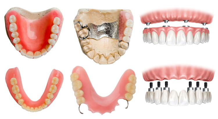 6 different dentures types