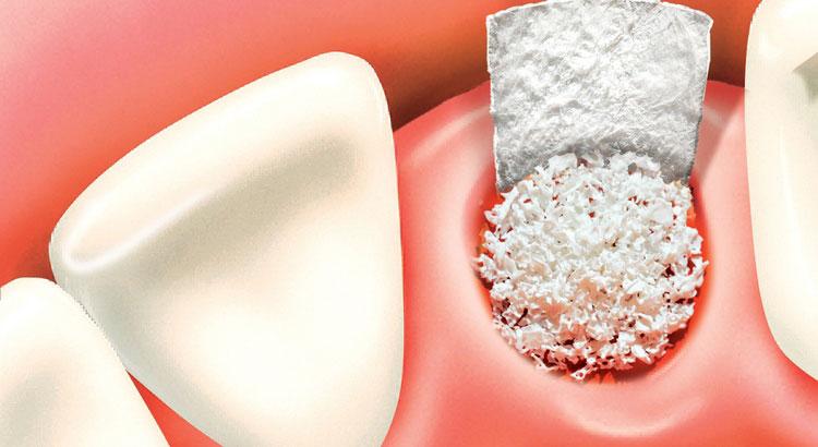Image result for dental Ridge Expansion