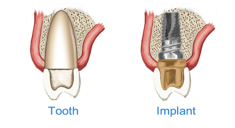 2 dental implants for upper front teeth