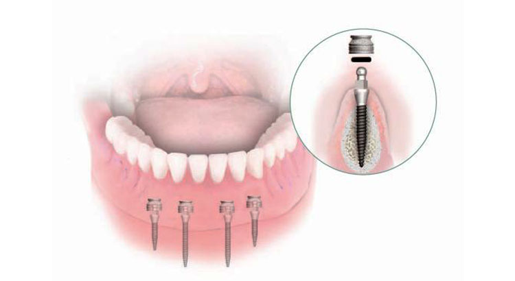 3 mini dental implants to stabilize a lower denture