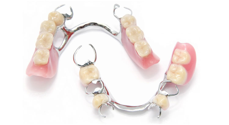 removable partial dentures with metal claps